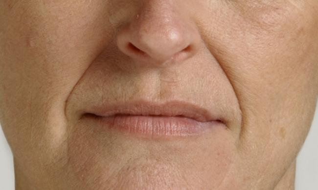 Botox-Prima-centro-medicina-estetica-le-muse