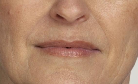 Botox-Dopo-centro-medicina-estetica-le-muse